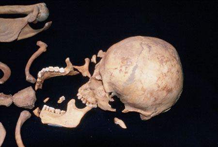 A skull with a broken jaw bone and cheek bone. There are also shoulder and collar bones.