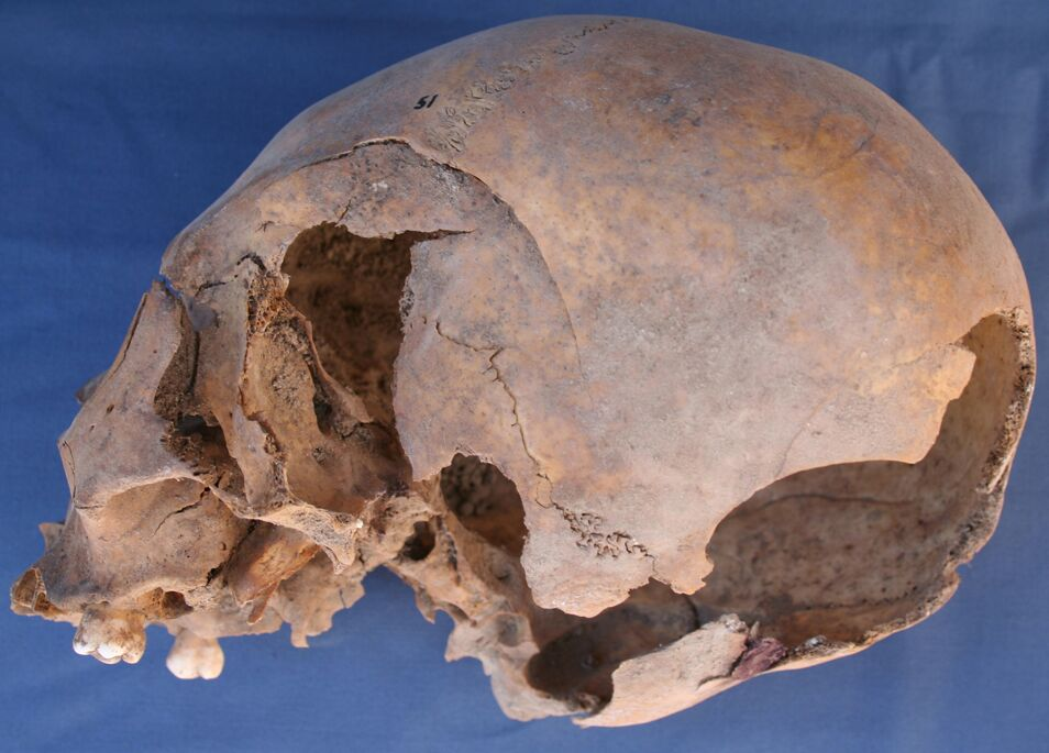 A skull is laying on it's side with the left side facing up. The bone is missing starting on the side of the head going towards the back.