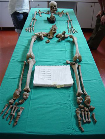 The majority of a skeleton laid out on a table with a teal table cloth. There is a book about skeletal anatomy between its knees and you can see the waist of someone stanidn at the head of the table.