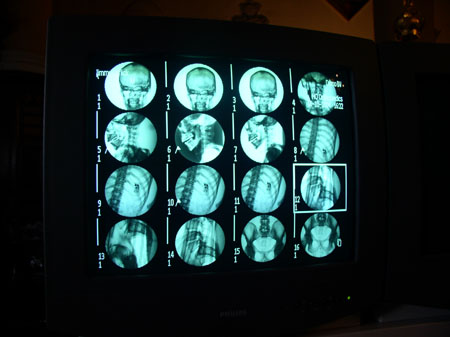 16 blue x-rays of a mummy in 4 by 4 rows. The photos are circular. The first row is of the back of the skull. The next three in the next row are of the left side of the skull. The next four are of the spine. The next one might be of a foot and both legs. The next one might be a hip joint. The next one might be a foot and both legs. The next two are of the pelvis.