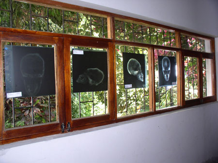 There are six rectangular windows with three wider rectangular windows above them. Eahc pane is surrounded by wood and has black metal in them making smaller rectangles. The first four panes have x-rays of skulls on them. There are either four or two individuals present in the x-rays. The first and last x-ray are from the bottom of the skulls. The second from the left is of the left side of the skull- this one shows cranial vault modification meaning the skull is very long. The second from the right is of the right of the skull and is an average shape. The wall above and below the windows is white.
