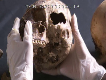 "Someone with gloved hands is holding a skull with the left side facing up. At the top in white lettering it says ""TCR 03:11:12:18"" indicating that this is footage from a camera."